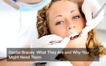 Dental Braces  What They Are and Why You Might Need Them